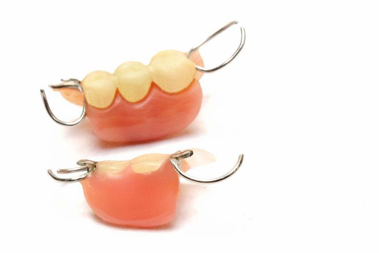 歯を抜いたあとの治療について