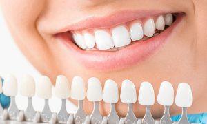 歯の変色について